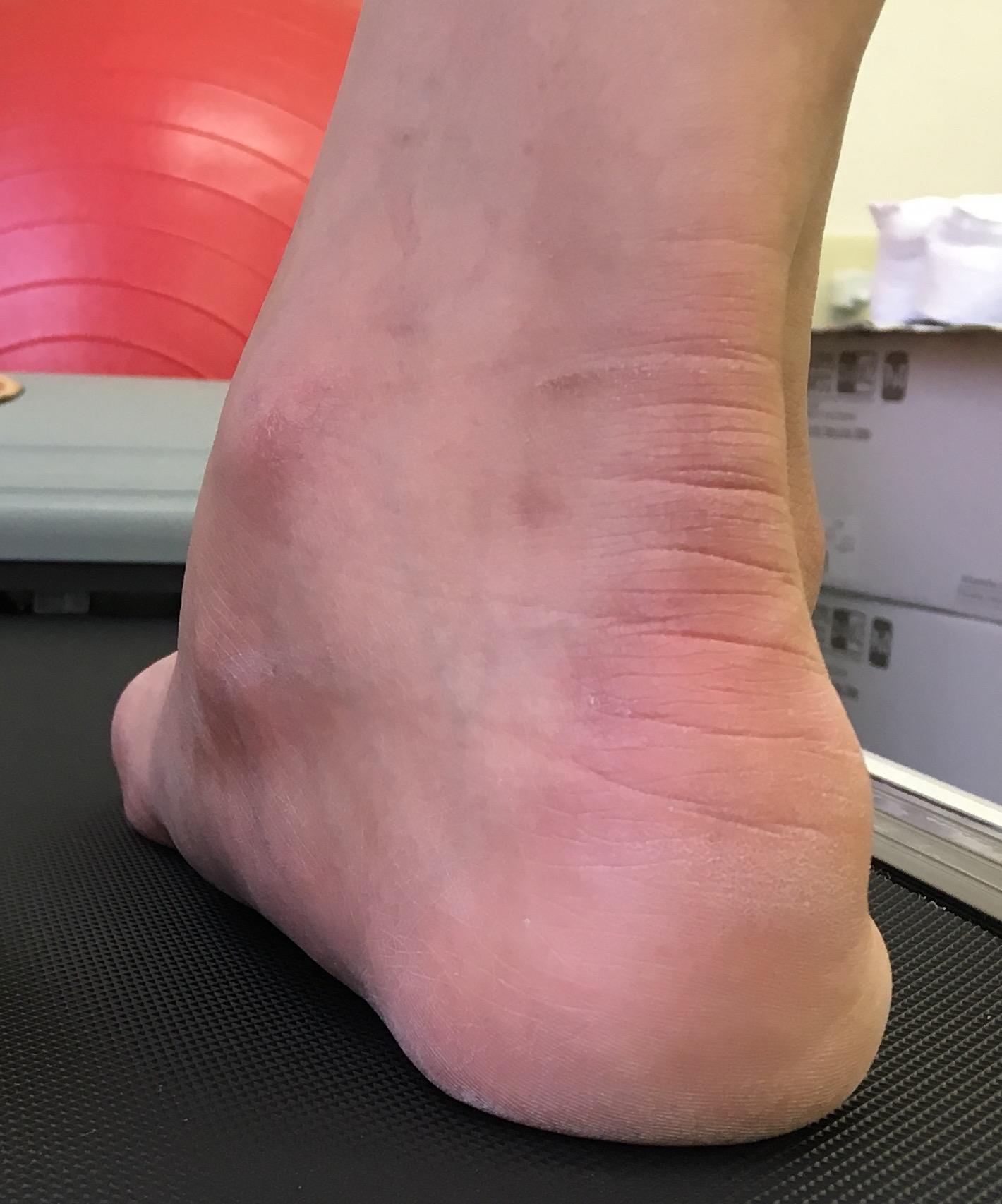 後脛骨筋障害
