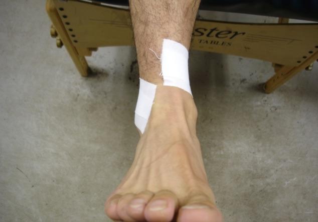 fibular tape